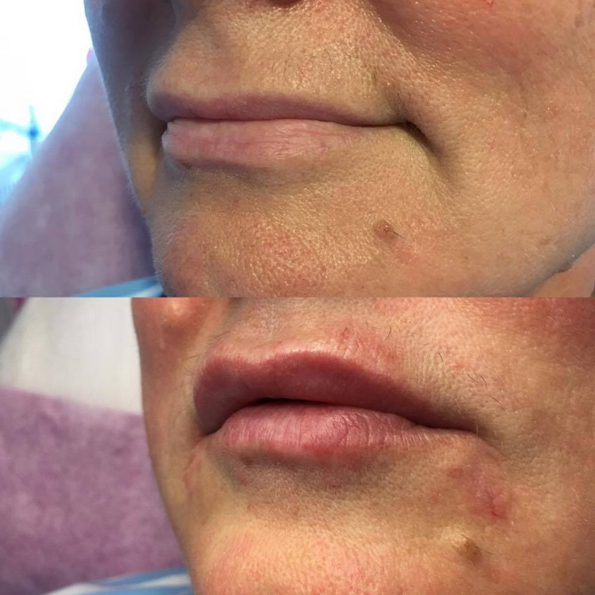 before after lips2