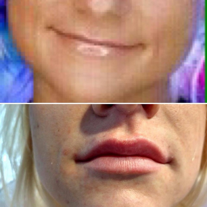 before after lips3