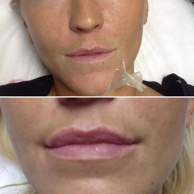 before after lips4