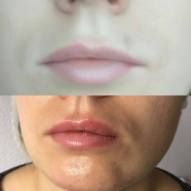 before after lips5