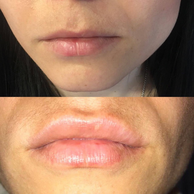 before after lips6