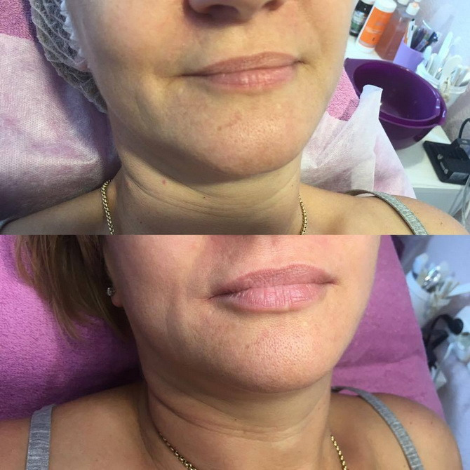 before after lips7